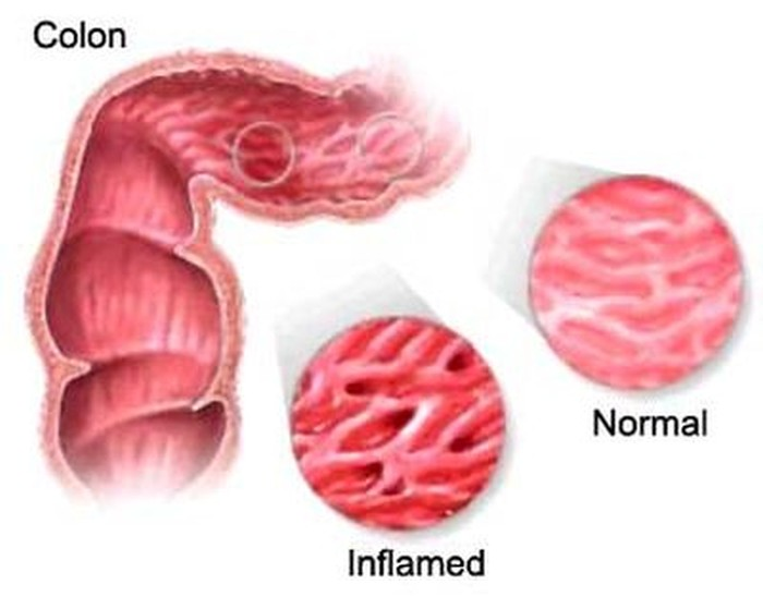 inflamed colon colitis